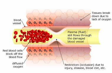 Restricted blood flow (ischemia) causes Hypoxia